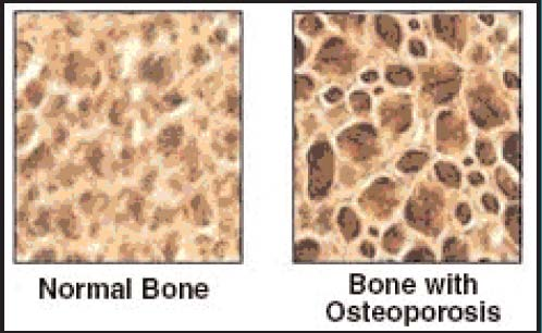 bone denisty